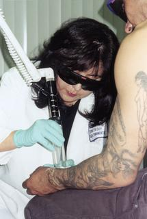 Nancy E. Jasso removing a tattoo from a patient's arm, ca. 2001